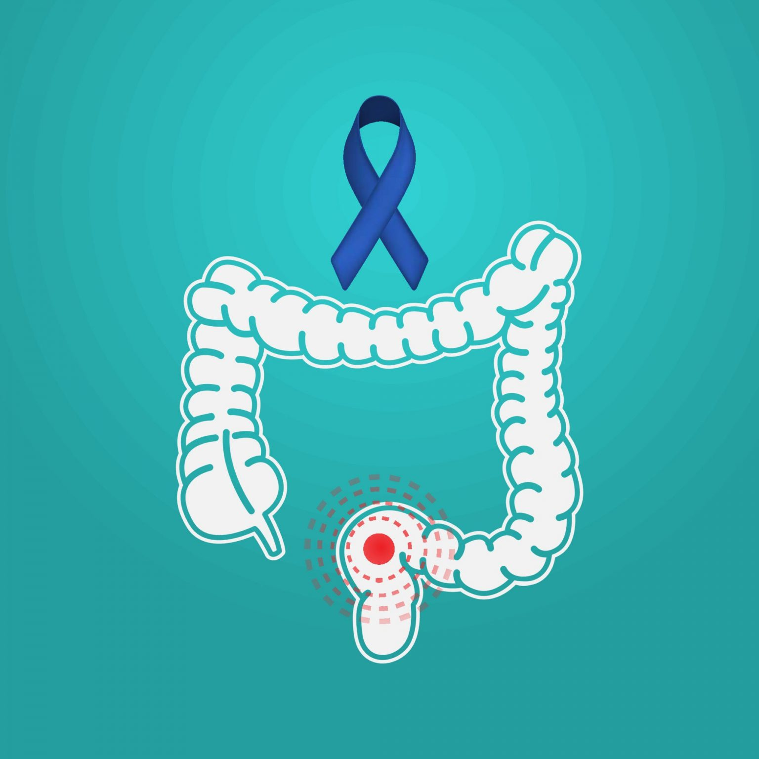 Colon Cancer: Knowing Your Risks and How to Cope